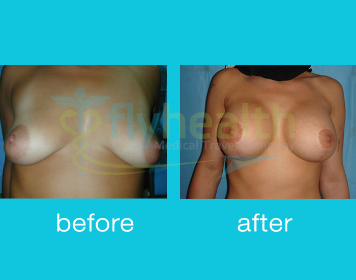 before-after-breast-enlargement-01
