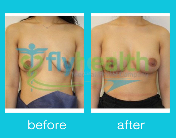 before-after-breast-enlargement-03