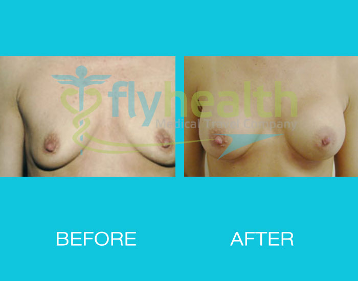 before-after-breast-enlargement-08