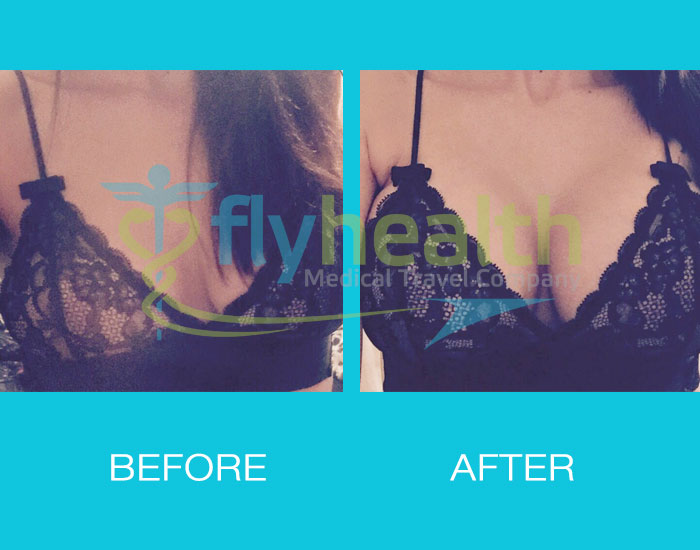 before-after-breast-enlargement-09