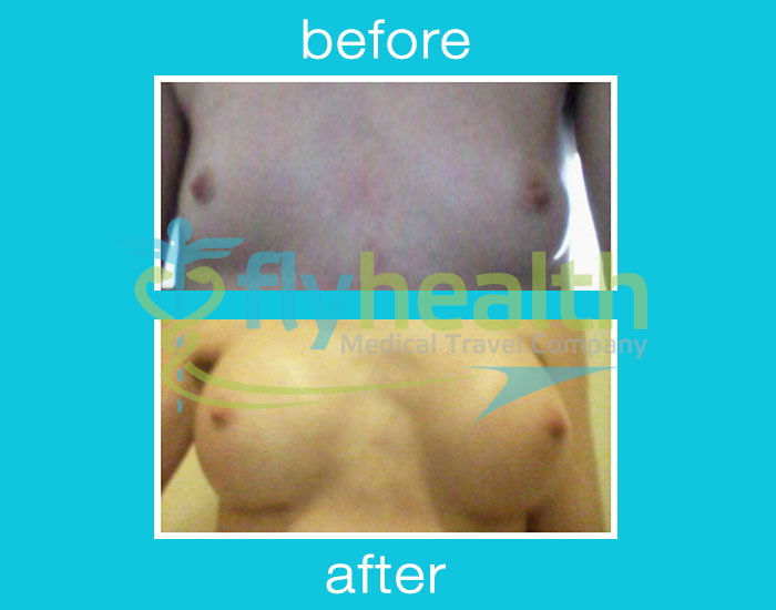 before-after-breast-implants-01