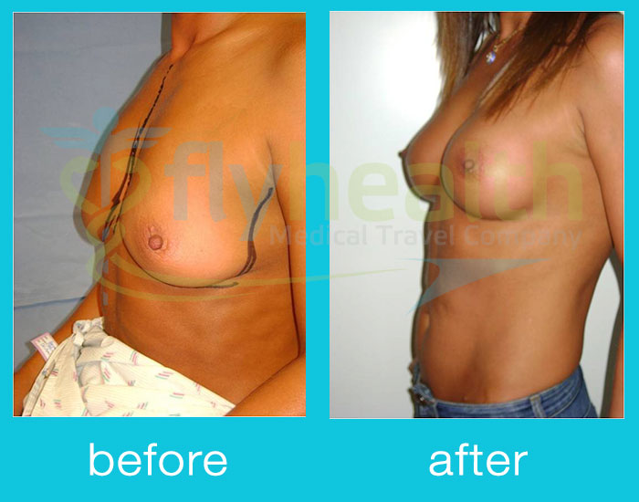before-after-breast-lift-01