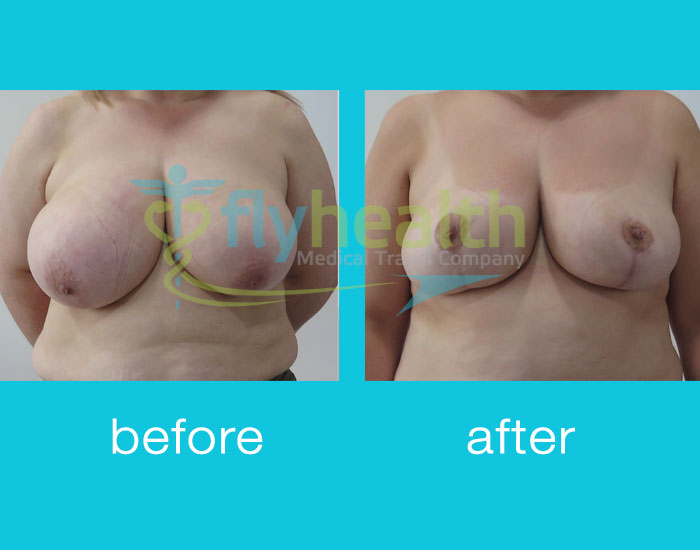 before-after-breast-reduction-03
