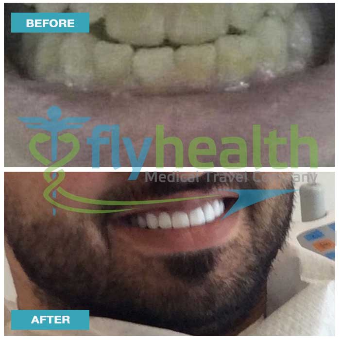 before-after-dental-treatments-02