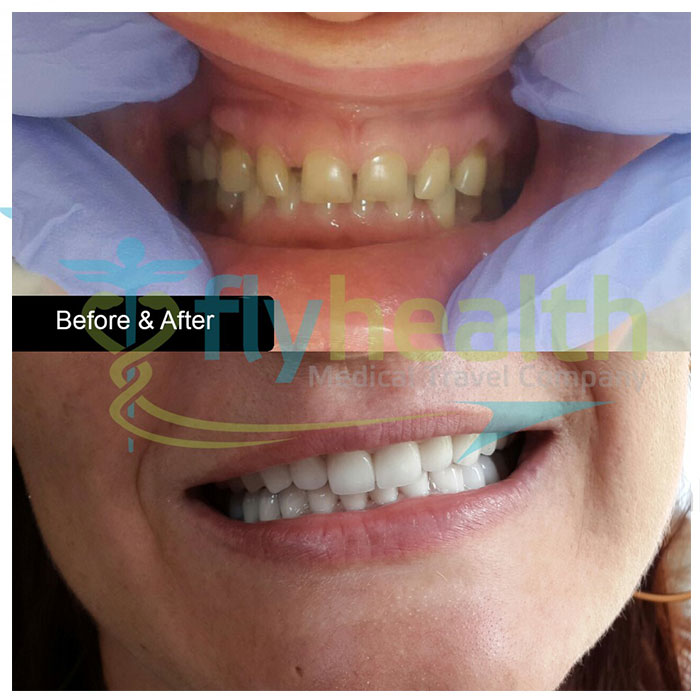 before-after-dental-treatments-05