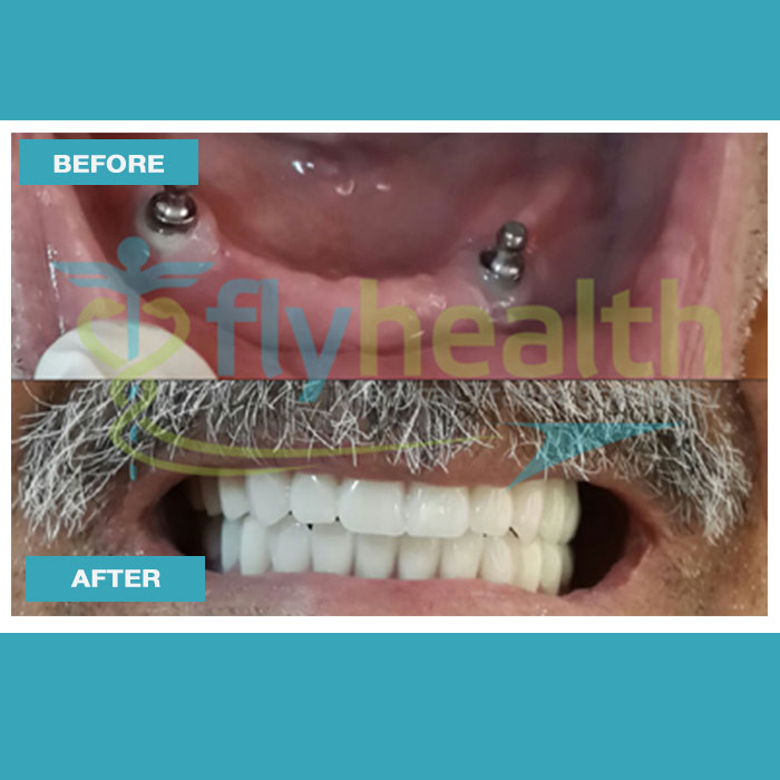 before-after-dental-treatments-08
