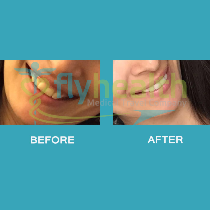 before-after-dental-treatments-veneers-02