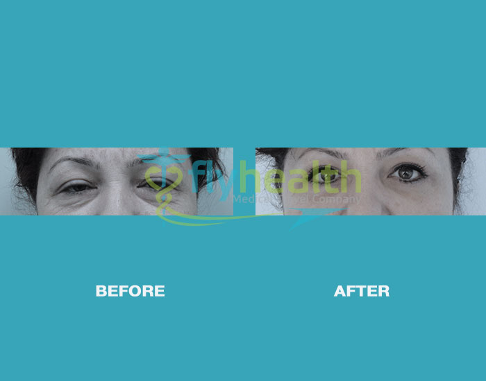 before-after-eyelid-surgery-01