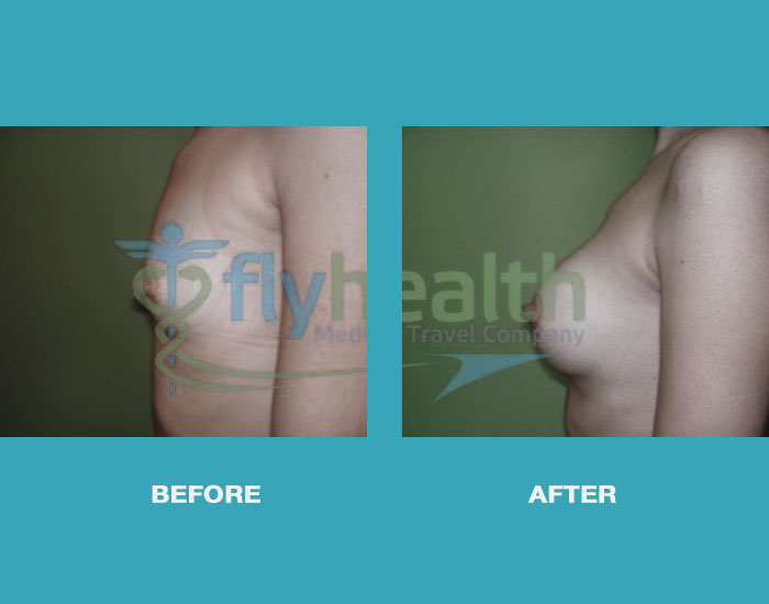 before-after-fat-grafting-01
