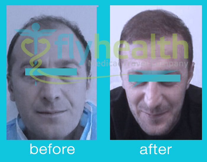 before-after-hair-transplant-03