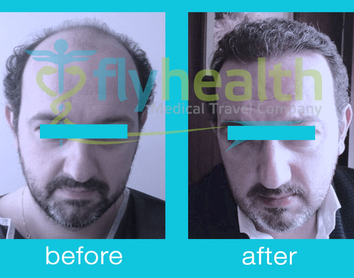 before-after-hair-transplant-04
