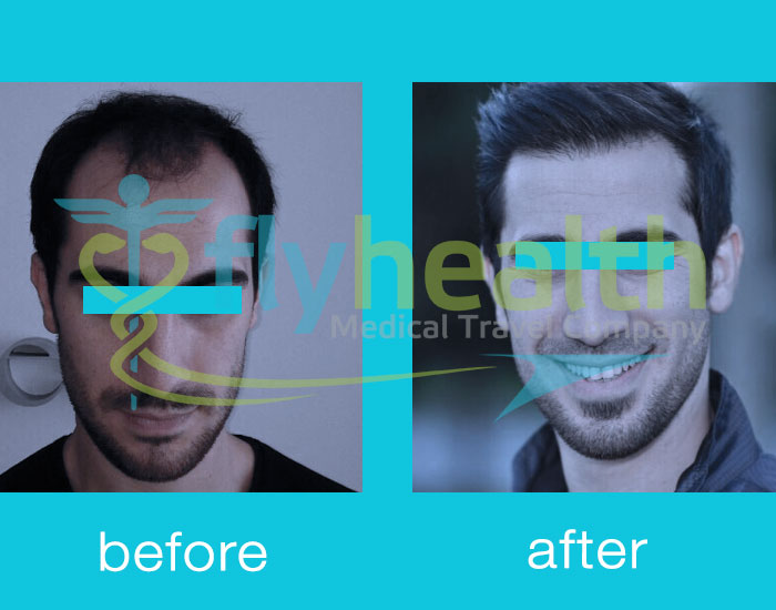 before-after-hair-transplant-05