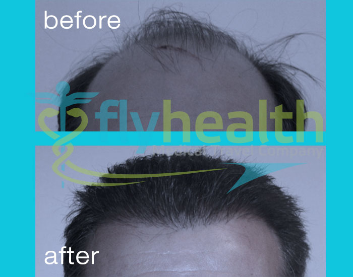 before-after-hair-transplant-07