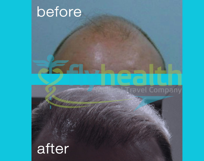 before-after-hair-transplant-08