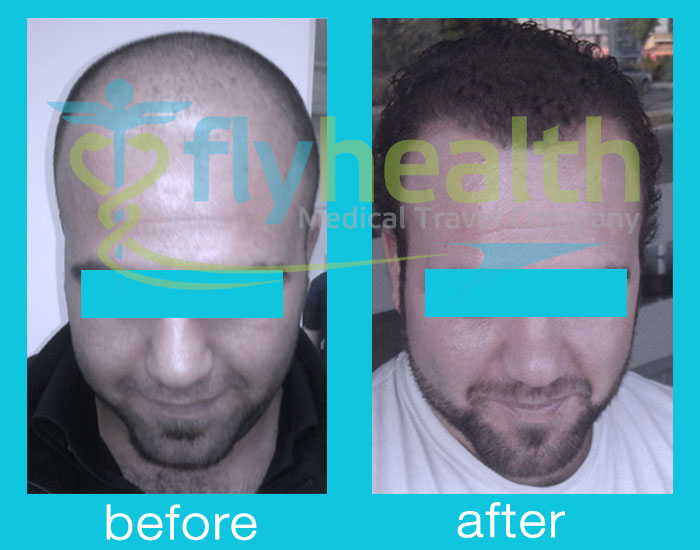 before-after-hair-transplant-09
