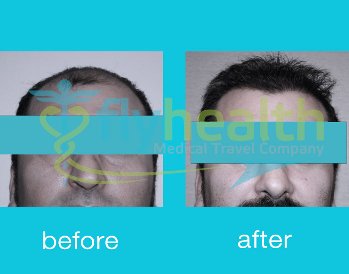 before-after-hair-transplant-10