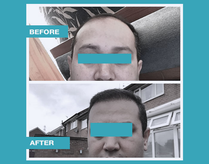 before-after-hair-transplant-11