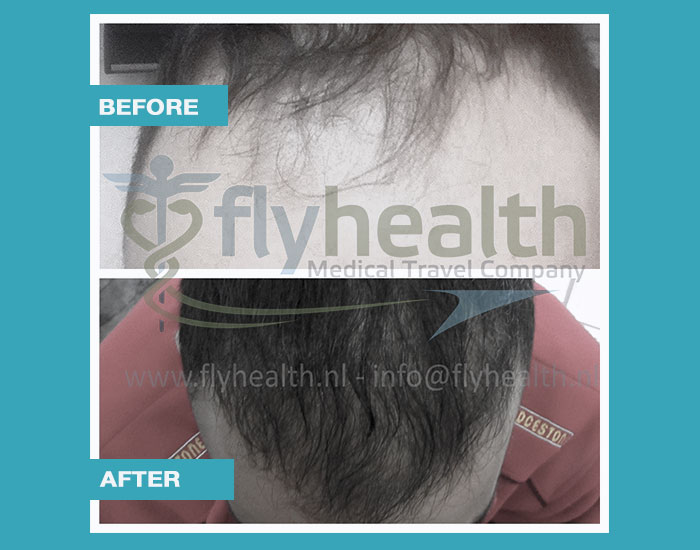 before-after-hair-transplant-13