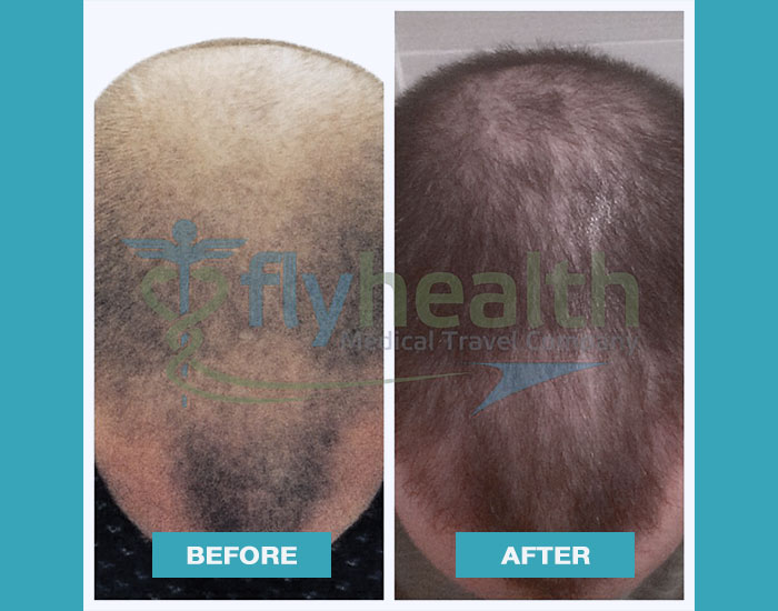 before-after-hair-transplant-15