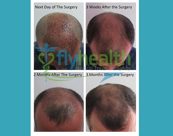 before-after-hair-transplant-17