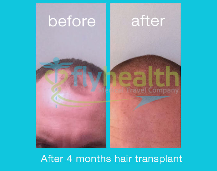 before-after-hair-transplant