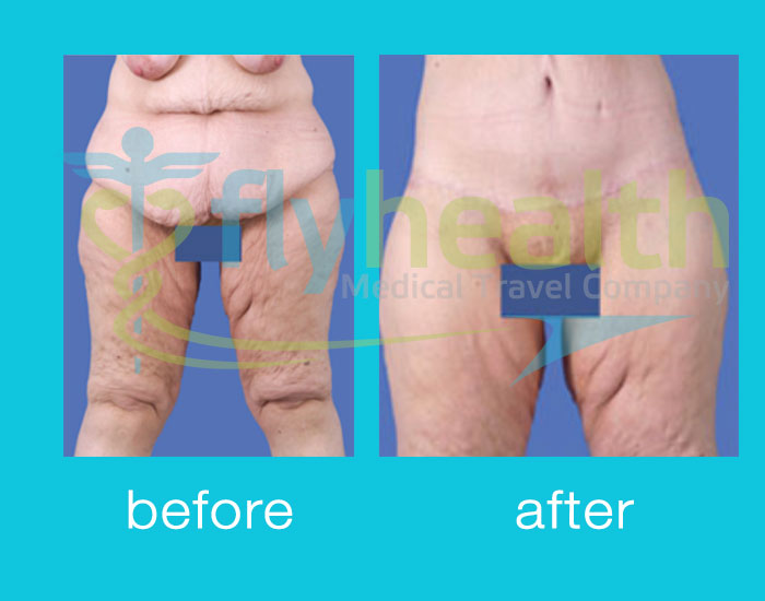 before-after-liposuction-05