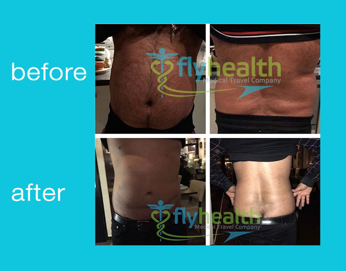 before-after-liposuction-06