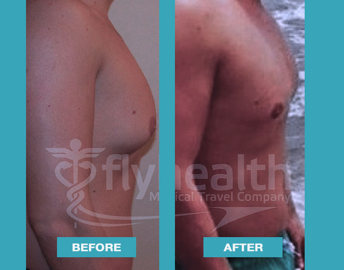 before-after-male-breast-reduction-01