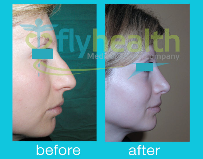 before-after-nose-surgery-03
