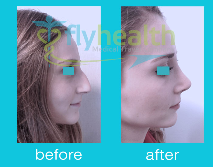 before-after-nose-surgery-06