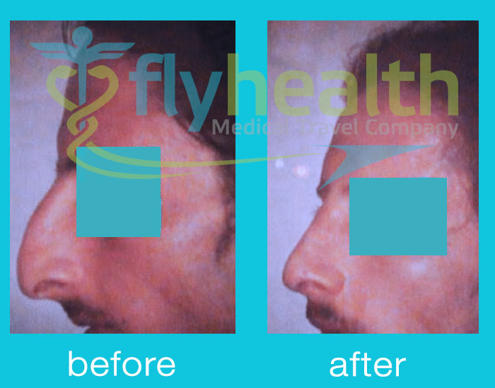before-after-nose-surgery-10