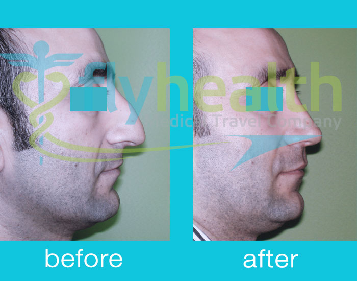 before-after-nose-surgery-13
