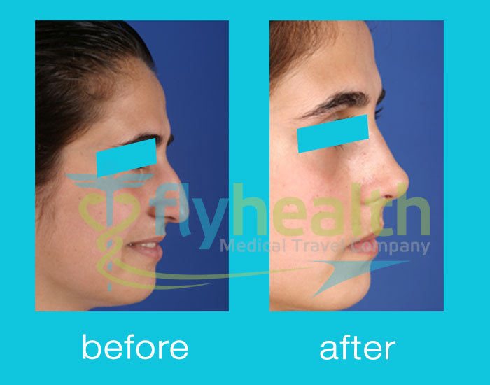 before-after-nose-surgery-17