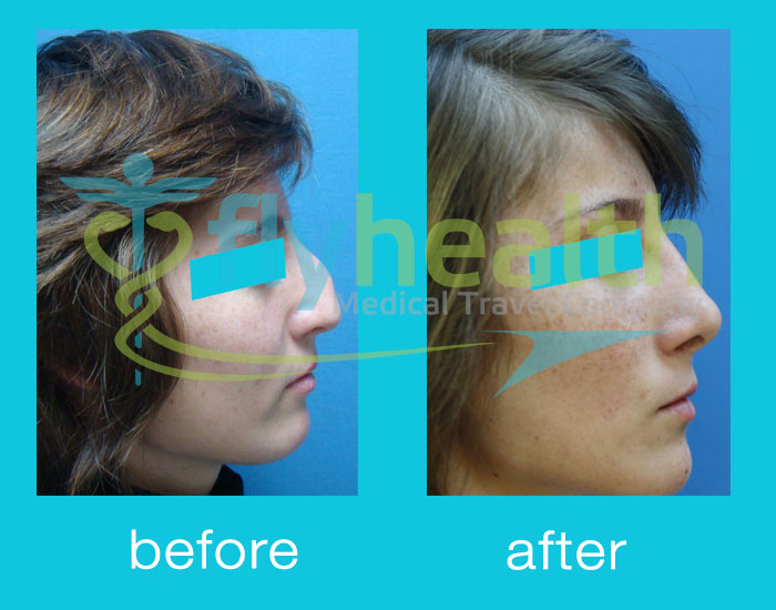 before-after-nose-surgery-18