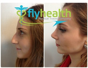 Nose Surgery Turkey Before and After