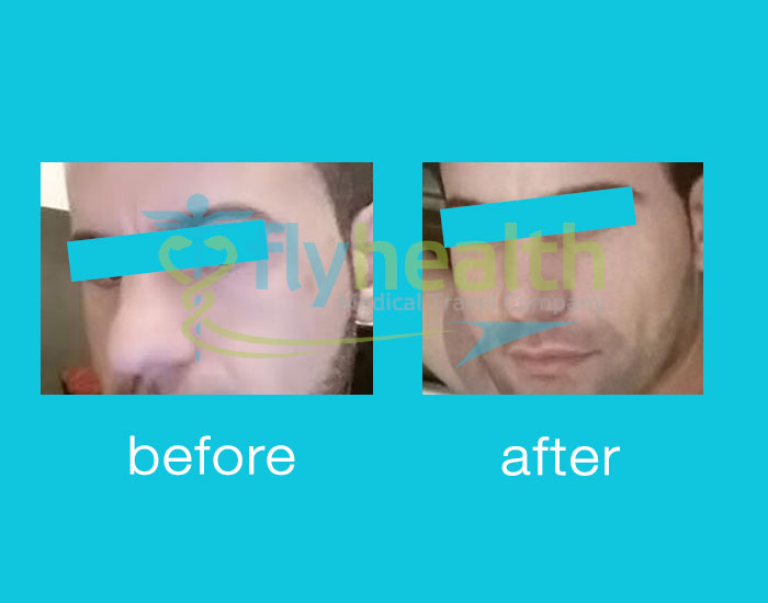 before-after-nose-surgery-16