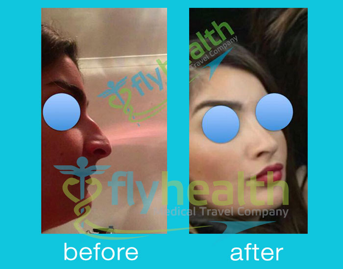 before-after-nose-surgery-22 Flyhealth