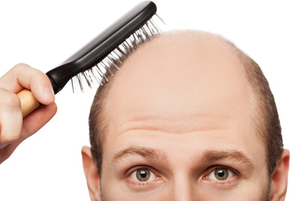 Am I going bald - Flyhealth