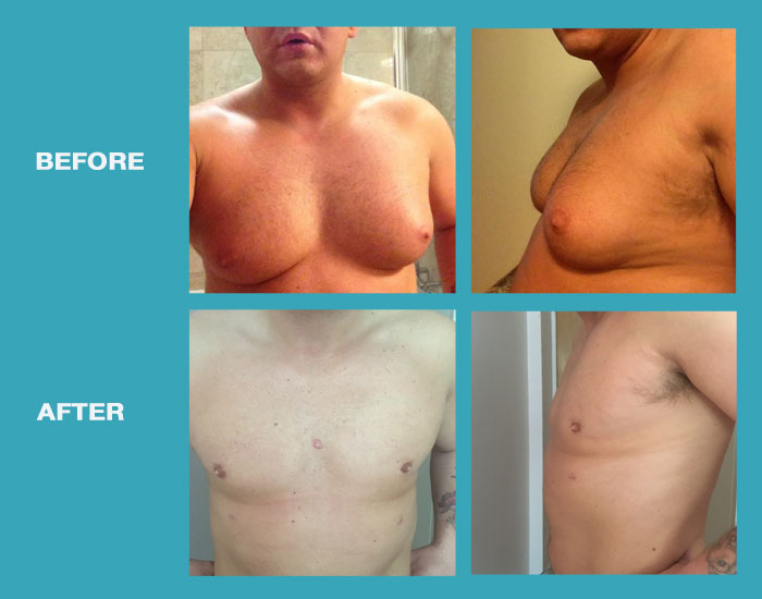 before-after-male-breast-reduction-02