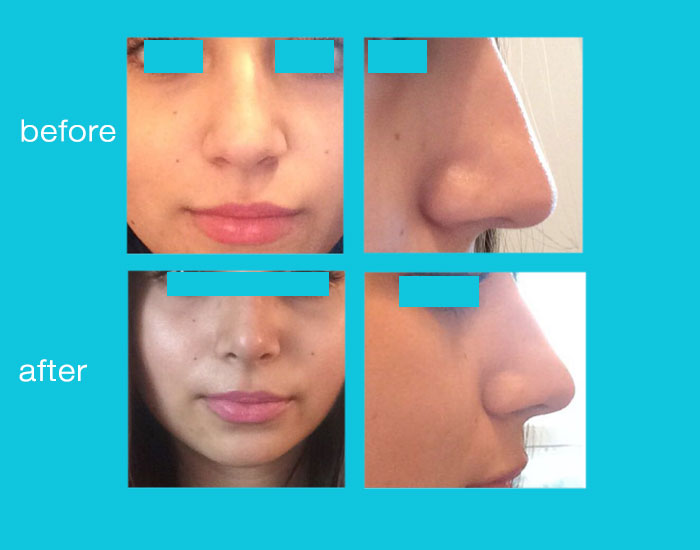 before-after-nose-surgery-23