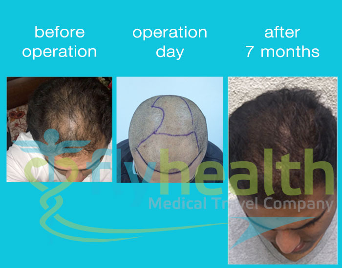 before-after-hair-transplant-23