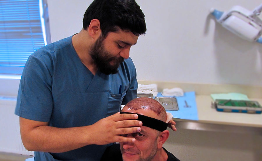 important-Issues-to-Know-about-Hair-Transplant