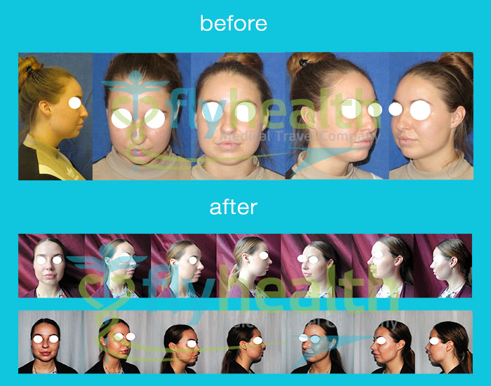 before-after-nose-surgery-27