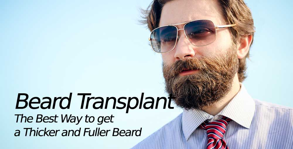Beard Transplant – The Best Way to get a Thicker and Fuller Beard