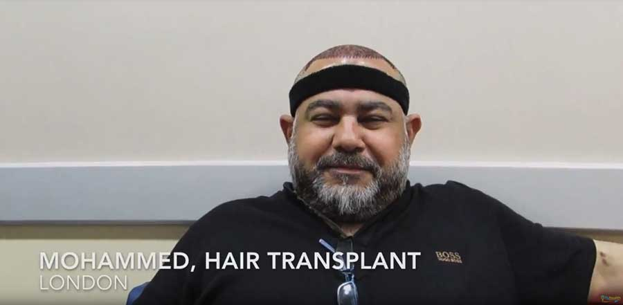 Hair-Transplant-Review,-Mohammed-from-London