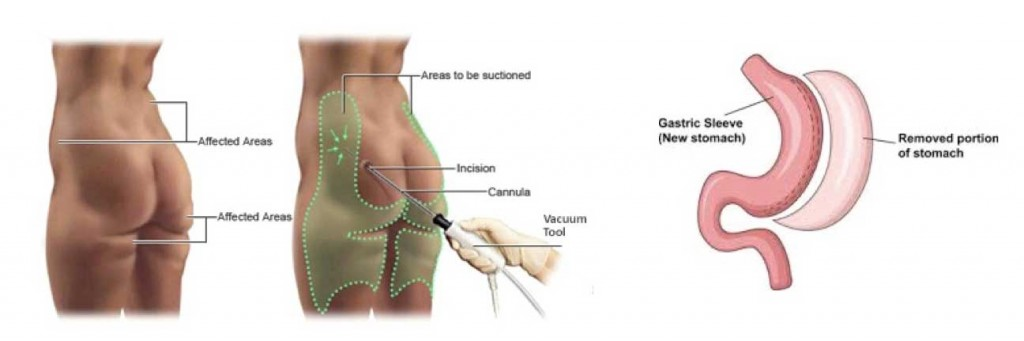 liposuction-vs-gastric-sleeve-in-Istanbul