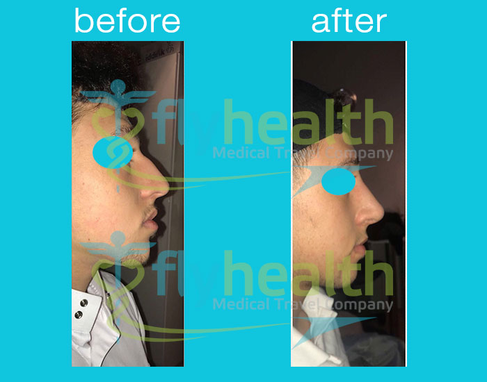 FlyHealth Nose Surgery Before & After
