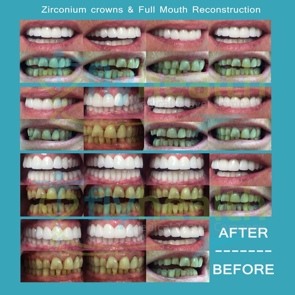 Zirconium-crowns-Full-Mouth-Reconstruction-before-after