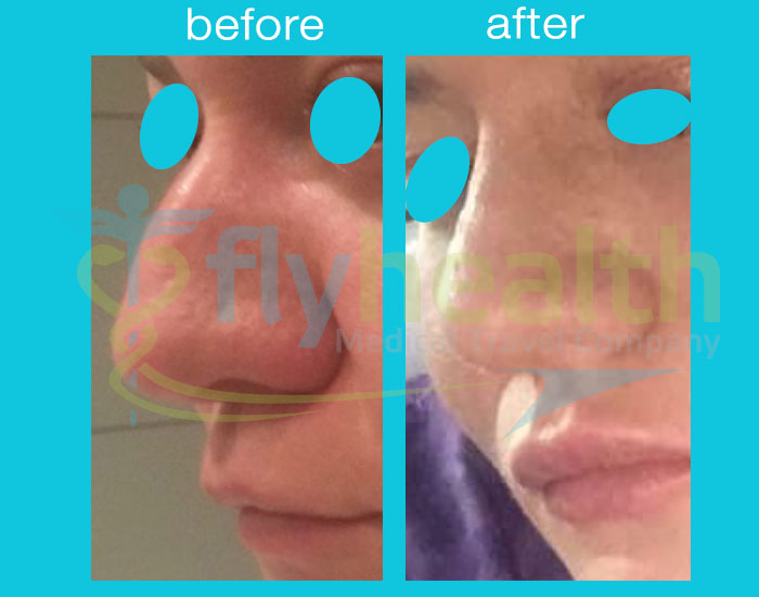 before-after-nose-surgery-36