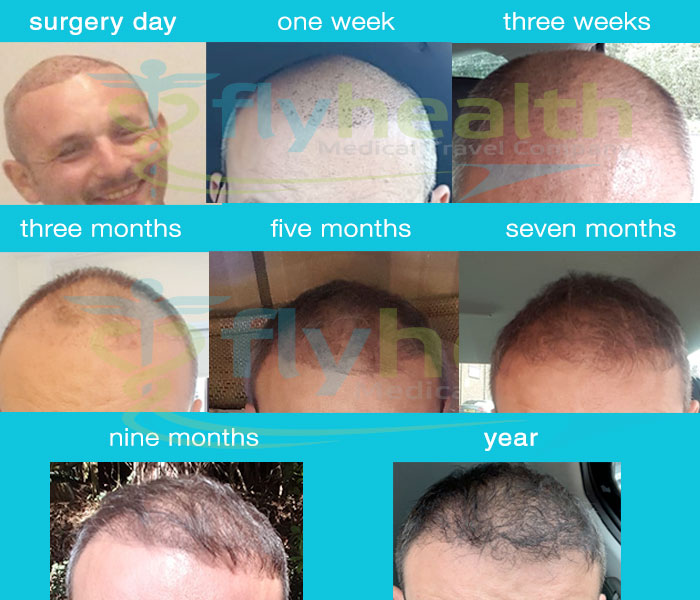 before-after-hair-transplant-after-year